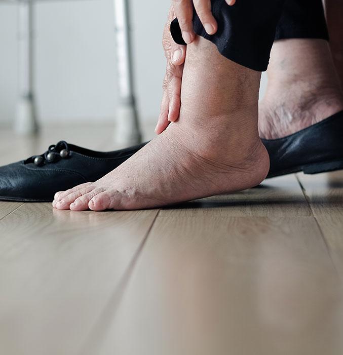 Diabetic Foot 04